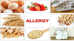 How to efficiently train your staff about food allergies | QSRWeb