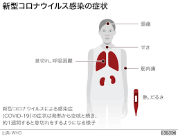 コロナ 咳 の 特徴