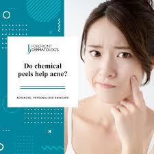 Rosacea ist eine erkrankung, die rund 14 … Do Chemical Peels Help Acne Forefront Dermatology