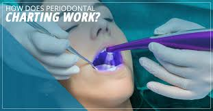 Dental Implants Seattle How Does Periodontal Charting Work