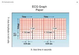Ecg Graph Paper Magdalene Project Org