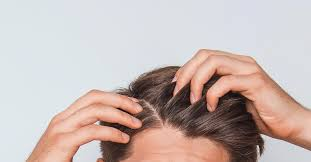 scabs and sores on scalp causes and treatment