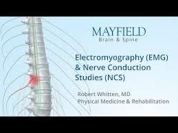 My Emg Chart Electromyography Emg Nerve Conduction Studies Ncs