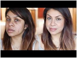how to cover acne scars without makeup