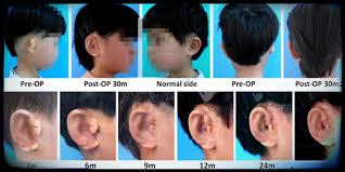 queste orecchie sono state create in laboratorio il post 0