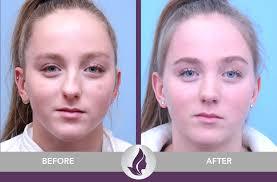 nose surgery minneapolis
