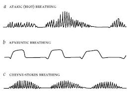 Types Of Breathing Patterns Ventilatory Control During Wakefulness And Sleep Part 2