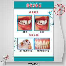 Buy Porcelain Dental Restoration Front And Rear Removable