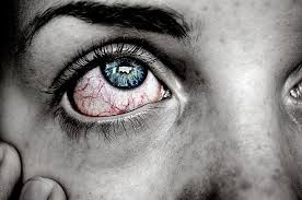 How to Tell if Your Itchy Red Eyes Are Signs of an Allergy or ...