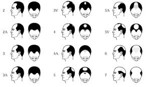 male haircut numbers haircuts models ideas