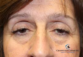 Ptosis Chart Identifying And Correcting Ptosis Droopy Eyelids