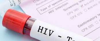 Hasil carian imej untuk hiv test wedding