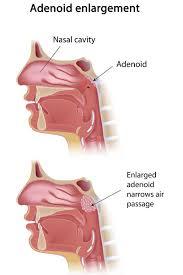 Adenoidectomy Healthdirect