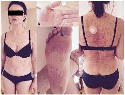 disseminated vesicular rash in an