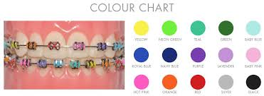 Braces Colour Chart Oremdentist Braces Colors Braces