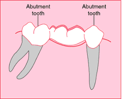 Abutment Definition Dental Abutment Definition Of Dental Abutment By Medical Dictionary