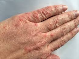 Hand Foot and Mouth Disease in Adults - Medical Facts