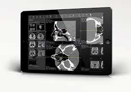 Ambra Health Debuts ProViewer, an Advanced Cloud-Based Diagnostic Viewer