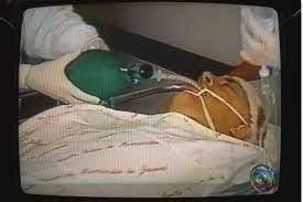 Até hoje os médicos se surpreendem', diz mulher de Gérson Brenner, 20 anos  após ator ser baleado na cabeça em assalto