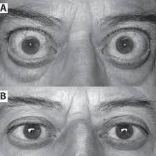 A Preoperative Appearance Of Our Patient With Exophthalmos