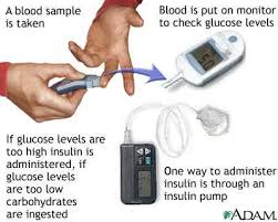 Low Blood Sugar Levels Chart Canada Symptoms Hyperglycemia