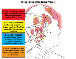 Trigger Points For Headaches Chart Elegant 6 Most Effective