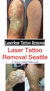 tattoo removal cost how to remove a small tattoo with salt cosmetic tattoo removal cream tattoo shirt how much does it the info on tattoo removal
