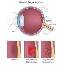 Eye Diseases Chart Mamaroneck Macular Degeneration Treatment Amd Treatment In