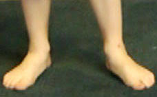 Flat Footed Flat Feet Not Just A Foot Problem Skills For Action