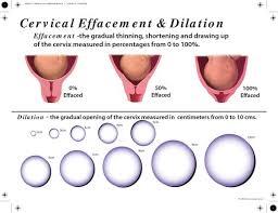 Cervix Dilation Diagram Cervix Dilation Chart Actual Size