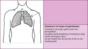Uitzaaiingen in de longen levensverwachting