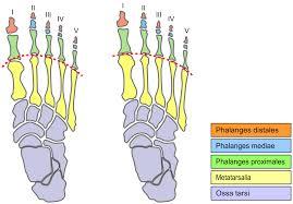 Foot Illness Chart Mortons Toe Wikipedia