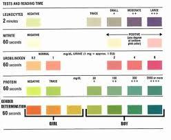 Urine Test Strips Color Chart 36 Genuine Dipstick Analysis Chart