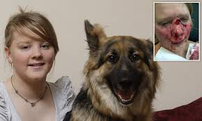 german shepherd attack owner. Girl 13 Savaged By German Shepherd Puppy Which Tore Chunk Out Of Her Nose And Left Needing 50 Stitches Daily Mail Online Attack Owner