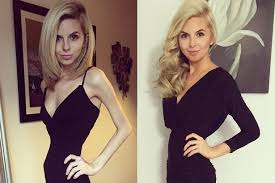 anorexic face before after. Plain Face Hayley Harris Is Pictured At The Height Of Her Illness Left And Now  In Anorexic Face Before After O