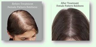 Female Pattern Hair Loss Reversible