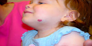 why do birthmarks form all about red birthmarks what it is its causes and treatment