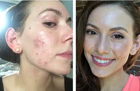 Acne adult chin women