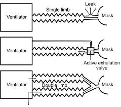 Noninvasive Ventilation For Acute Respiratory