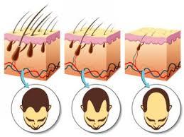Erblich bedingter haarausfall was hilft