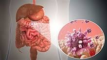Gastroenteritis Wikipedia