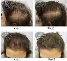 Thyroid Hair Loss Pattern