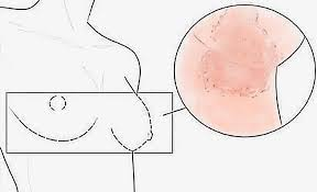 Itchy Breast - Causes, Treatment and Prevention of Breast Itching