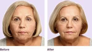 fighting signs of aging dermal fillers