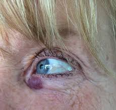 Bloeduitstorting onder oog
