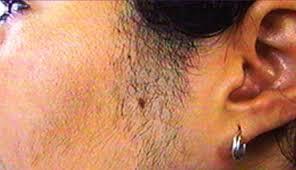Image result for دلیل رشد بی حد مو در صورت زن