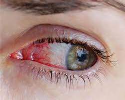 Home Remedies for Bloodshot Eyes – And When to See a Doctor ...