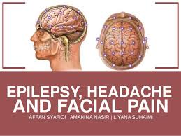 Epilepsy Headache And Facial Pain