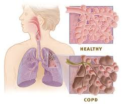 Image result for copd breathing test