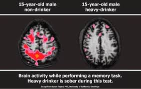 Beer No Year One Effects-of-alcohol-on-the-brain-